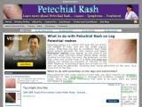 petechialrash.net